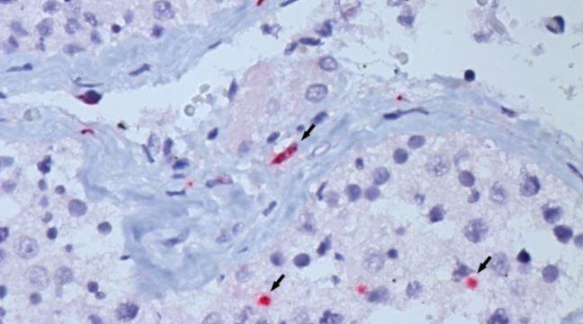 Estudo aponta que infecção por covid afeta testículos e fertilidade dos pacientes homens